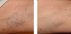 light-hair-removal1