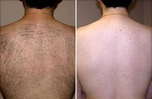 light-hair-removal2