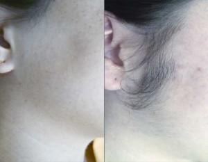 light-hair-removal5