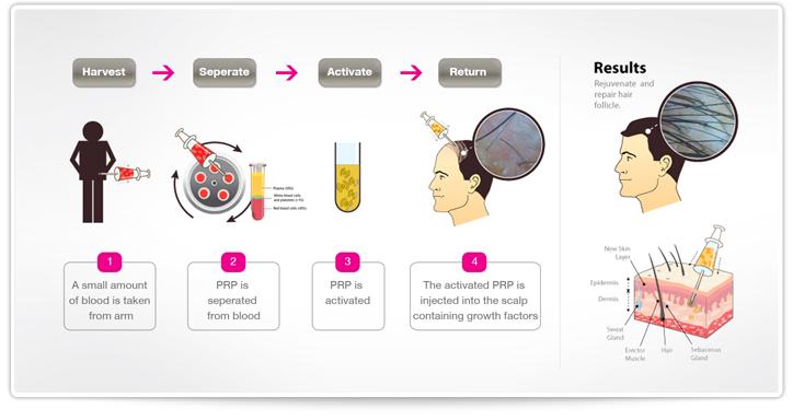 Dr Reza Mia Prp Hair Restoration Treatment