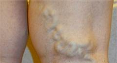 varicose-image1